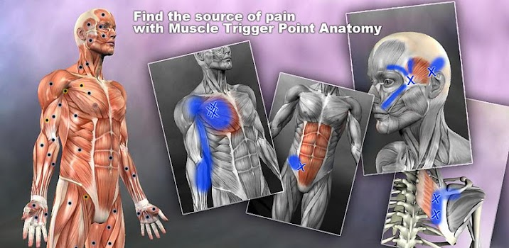 Muscle Trigger Point Anatomy - by Real Bodywork - Medical Category ...