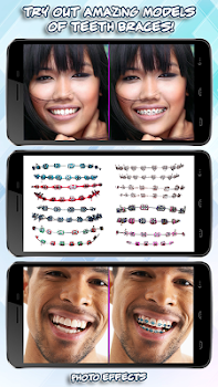 fake braces for teeth app funny photo booth by virtual art 4fun