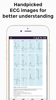 ECG Basics - Learning and interpretation made easy