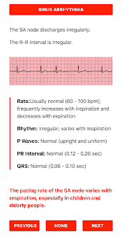 ECG FlashCards