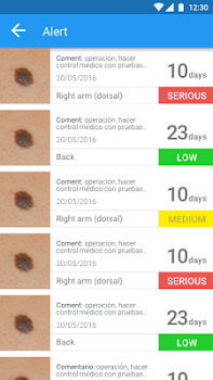 "Molexplore ""Skin Cancer App"""