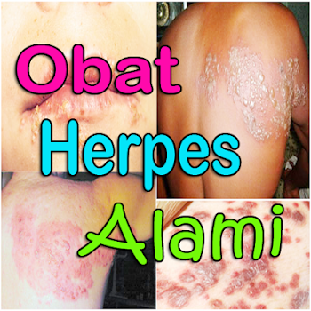 herpes disease essay Herpes is one of the common of more than 30 different sexually transmitted diseases (std's) in america today herpes is an infection that is caused by one of two closely related viruses, herpes simplex virus type 1 (hsv-1) and herpes simplex virus type 2 (hsv-2.