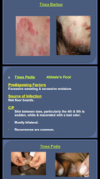 All Skin Infections & Treatments