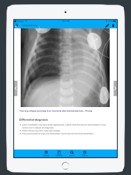CXR FlashCards - Reference app for Chest X-rays