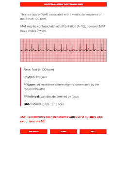 ECG FlashCards - Free