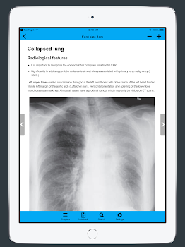 CXR FlashCards